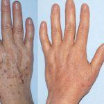 AFT HANDS
