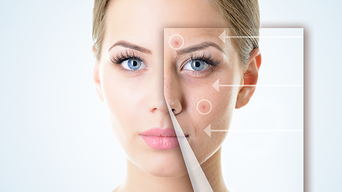 wilmington med spa acne treatments